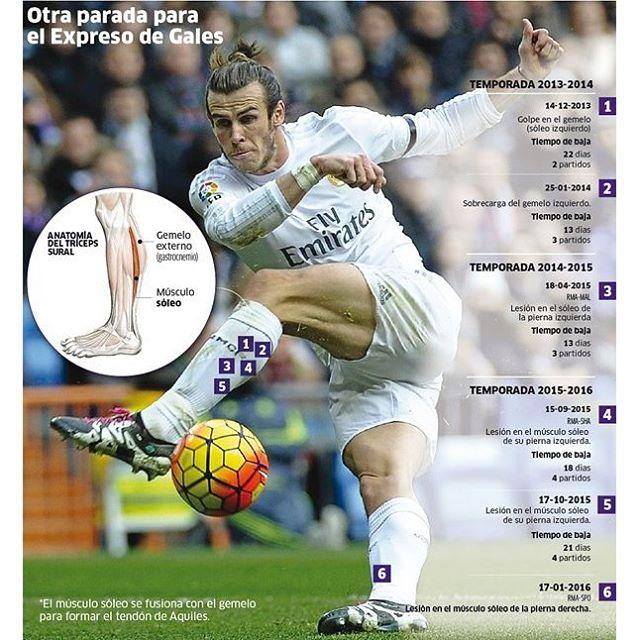 Gareth-Bale-lesion-soleo.jpg